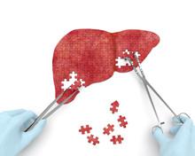 Liver Operation Puzzle Concept...