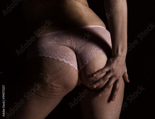 Photo  hyperemia