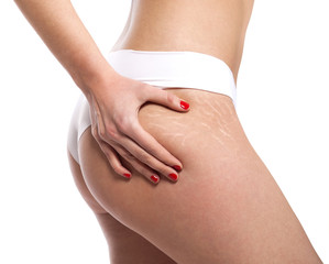 Stretch marks on woman's buttocks