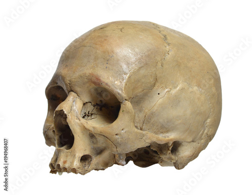 Skull of the human