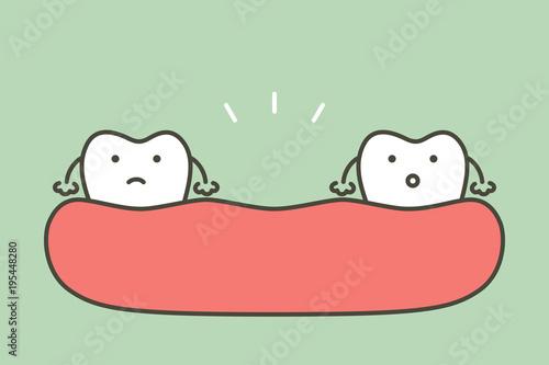 missing tooth, space between teeth in mouth Wallpaper Mural