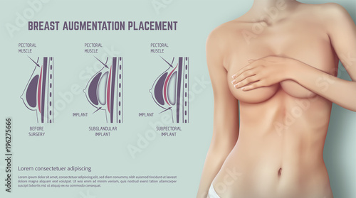 Fotografie, Obraz  Diagram about method of insertion for breast implant