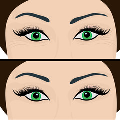 Wrinkles and fine lines under eyes to remove. Before and After. Eyes lifting