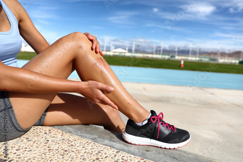 Sports injury painful scratches and open wounds on leg of runner girl that has fallen on running tracks at stadium. Athlete in pain with abrasions on legs.