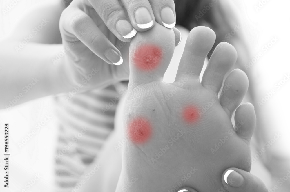 Fototapeta girl shows doctor foot of foot and with problem areas on skin,