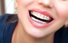 Closeup Female Smile With Ceramic Braces Teeth. Orthodontic Treatment.