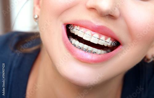 Fotografia  Closeup female smile with ceramic braces teeth