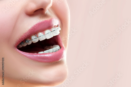 Fotografia  Close up open mouth with Ceramic and Metal Braces on beautiful Teeth