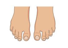 Female Or Male Foot Sole, Bare...