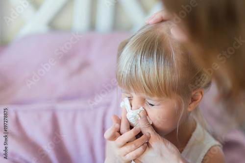Fényképezés  Child with runny nose