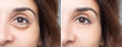 Woman face before and after blepharoplaty, eye with and without puffiness