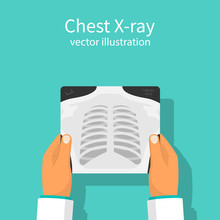 Chest X-ray. Doctor Checking Chest X-ray Holding In Hand. Medical Research, Analysis. Doctor Checks. Vector Illustration Flat Design. Isolated On White Background.