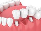 Fototapeta Most - 3d render of jaw with dental bridge