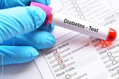 Cuadros en Lienzo Blood sample for diabetes diagnosis