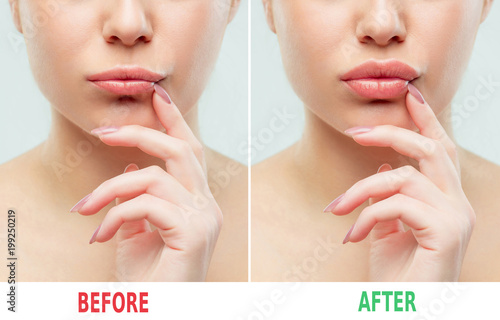 Fotografía  Before and after lips filler injections