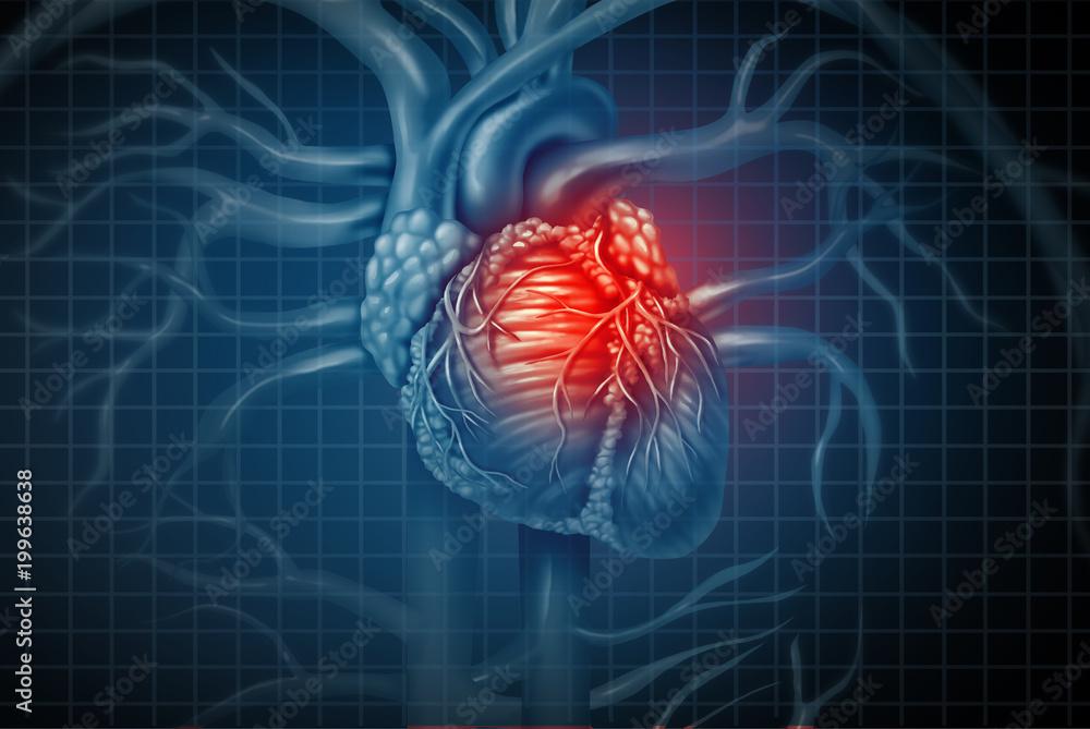 Fototapety, obrazy: Heart Attack