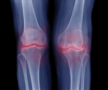 X-ray Image Of Both Knee Osteoarthritis (OA Knee), Show Narrow Joint Space ( Joint Cartilage Loss ) , Osteophyte , Subchondral Sclerosis, Radiography With Deformed Knee Joint
