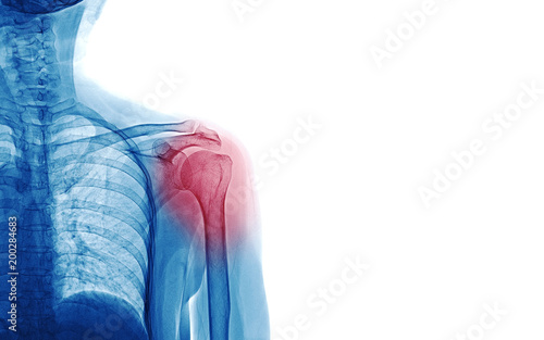 Fényképezés X Ray image of patient who have shoulder pain isolated on white background, spac