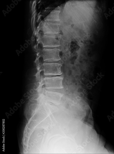 Fotografía  lumbar spine of a human body on x-ray side view.