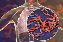 Secondary Tuberculosis In Lungs And Close-up View Of Mycobacterium Tuberculosis Bacteria, 3D Illustration