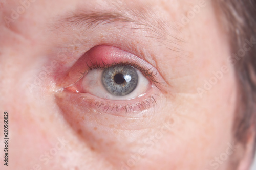 Painfully red eye sty, infected purulent eye Wallpaper Mural