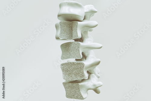 Fotografía Osteoporosis on the spine - 3d rendering