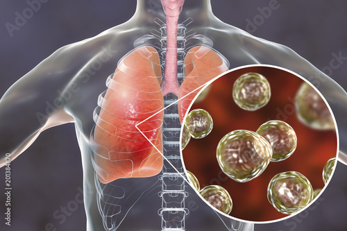 Photo Blastomyces dermatitidis infection of lungs, conceptual image, 3D illustration