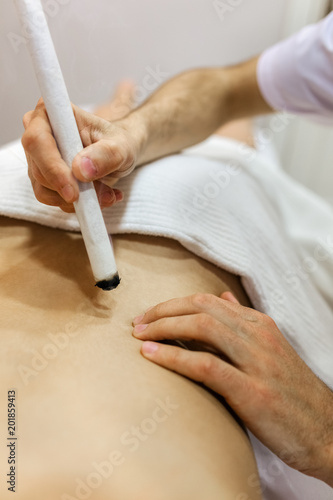 Fototapeta  Woman being treated with acupuncture and moxibustion treatments