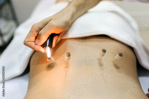 Fényképezés Woman being treated with acupuncture and moxibustion treatments