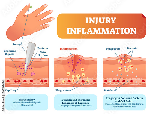 Fotografie, Obraz  Injury inflammation biological human body response vector illustration scheme