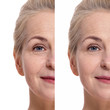 canvas print picture - Middle aged woman face before and after cosmetic procedure. Plastic surgery concept.