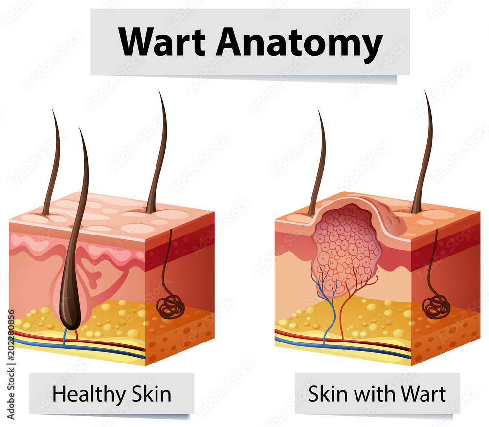 Fototapeta Wart Human Skin Anatomy Illustration