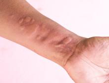 Skin Allergy Symptoms On Hand