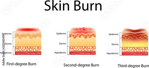Carta da parati skin burn