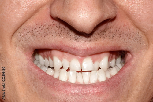 Fotografie, Obraz  Close-up portrait of man with crooked white ugly teeth, terrible smile