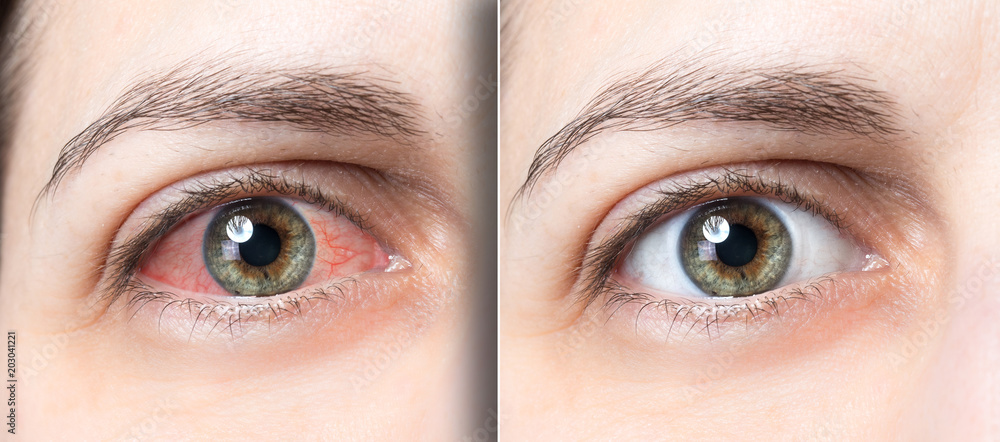 Fototapety, obrazy: Woman red eye before and after eyewas
