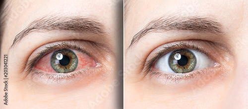 Fotografía  Woman red eye before and after eyewas