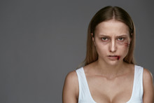Domestic Violence. Woman With ...