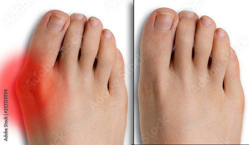 Fotografía  Pain caused by hallux valgus, comparison before and after surgery