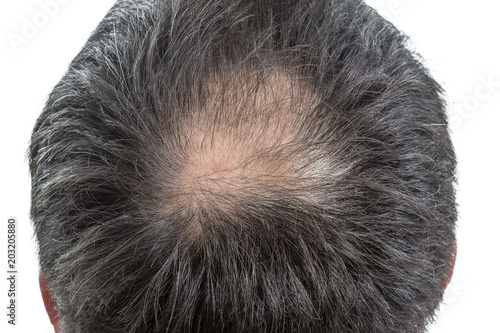 Photo male head with circular thinning hair or alopecia