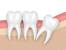 3d Render Of Teeth With Wisdom Distal Impaction