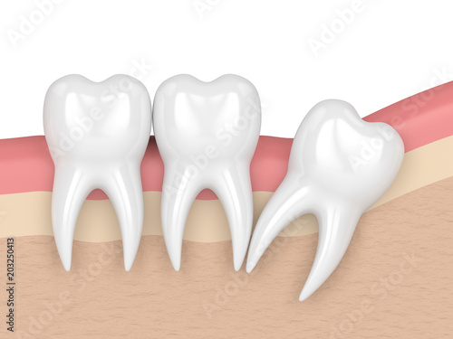 3d render of teeth with wisdom distal impaction #203250413