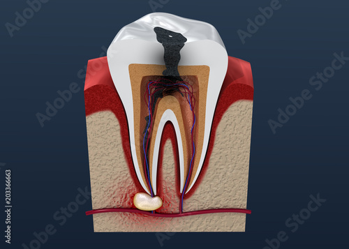 Obraz Tooth decay. 3D illustration - fototapety do salonu