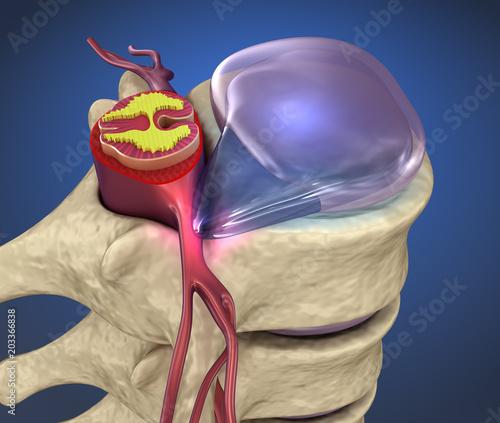 Fotomural  Spinal cord under pressure of bulging disc, 3d illustration
