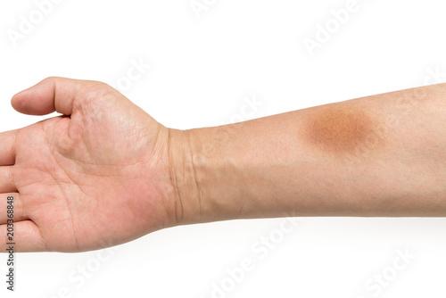 Fotografia  腕の痣