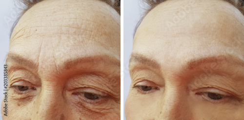 face woman elderly wrinkles before and after Fototapet