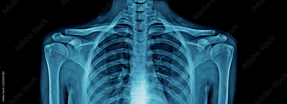 Fototapeta upper part of human body x-ray, high quality chest x-ray and part of spine and full AP of shoulder joint in blue tone for webpage, banner