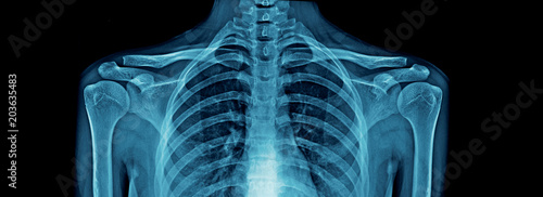 Photographie upper part of human body x-ray, high quality chest x-ray and part of spine and f