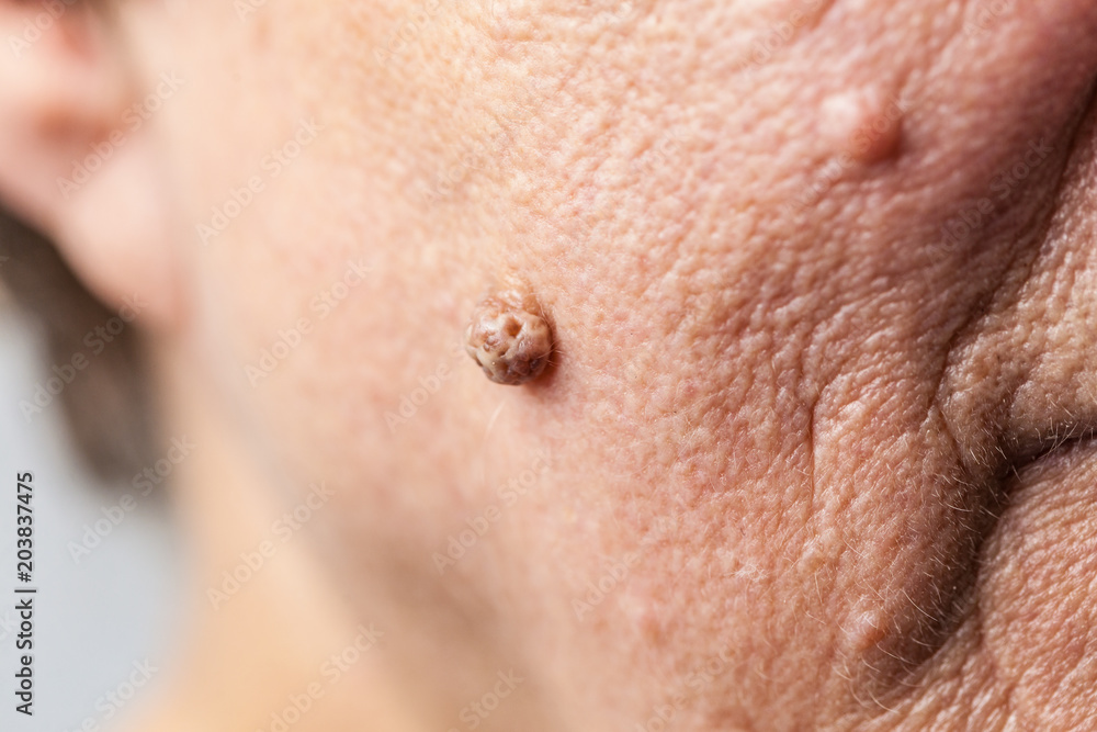 Fototapeta Elderly pensioner female, dermal fibroma closeup.