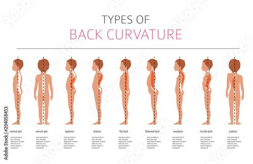 Fotografía  Types of back curvature. Medical desease infographic
